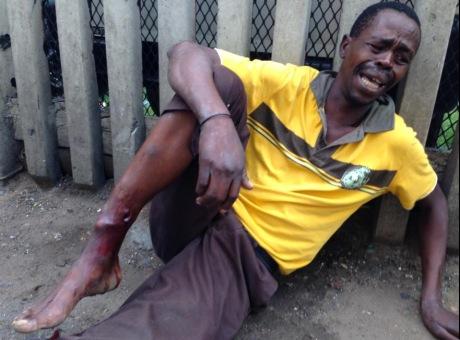 Xenophobic attack Durban
